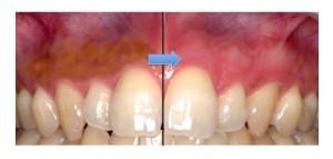 歯茎のピーリング